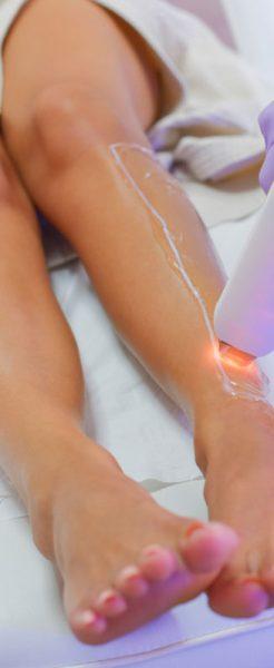 epilazione-laser-bg-farmacia-fanchini